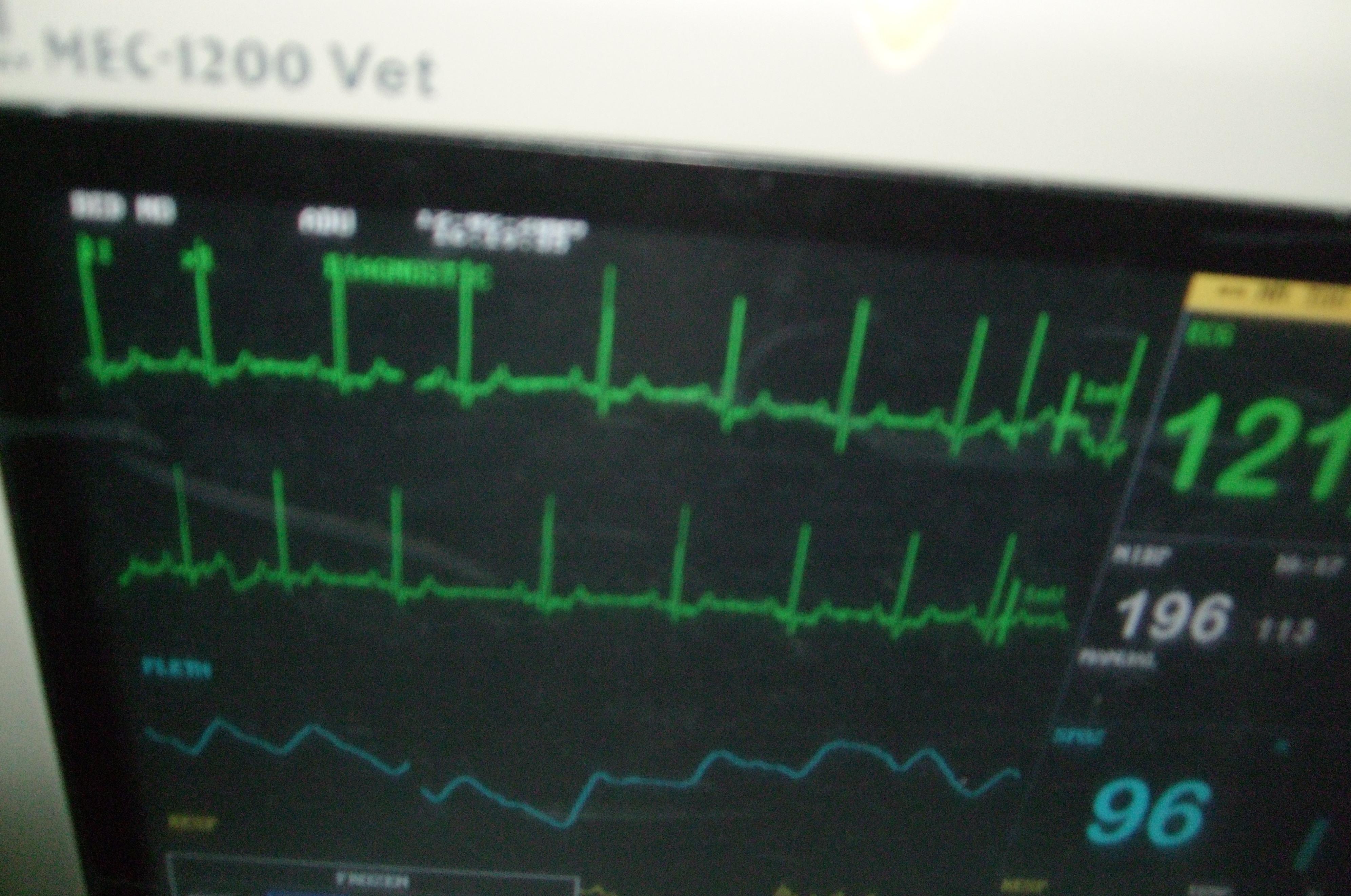 kardiologia4